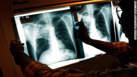 Fakta Cepat Tuberkulosis