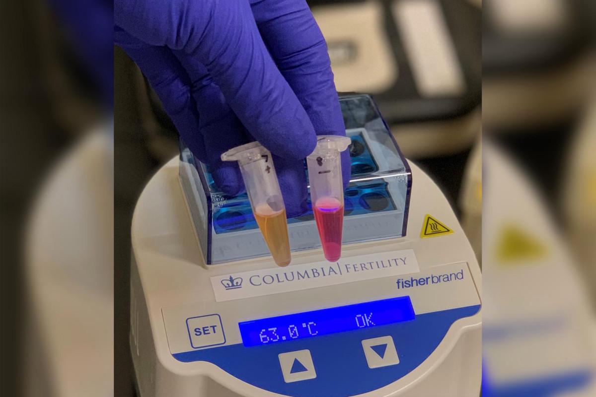 Dokter NYC mengembangkan tes COVID-19 noninvasif yang cepat