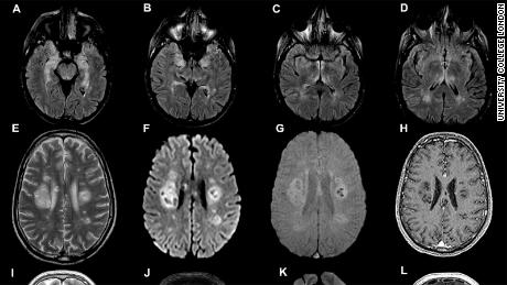 Pemindaian otak dari studi University College London, yang diterbitkan pada 8 Juli.