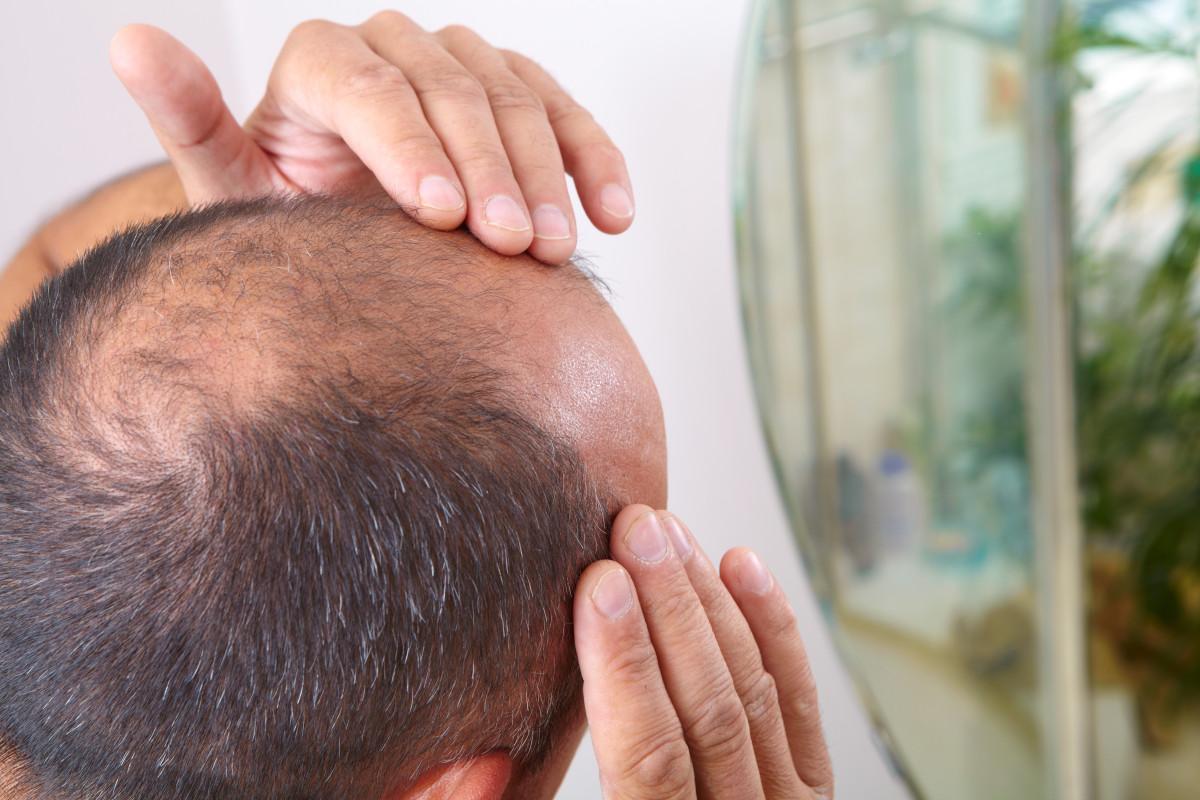 Kerontokan rambut mungkin merupakan gejala coronavirus, menurut penelitian